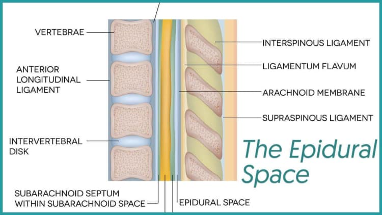 Where is the Epidural Space Located
